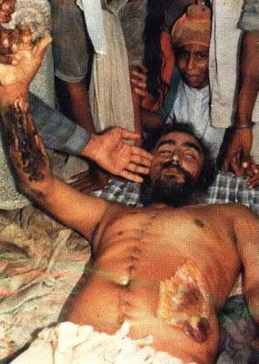 Torture-1 Avtar singh Shatrana